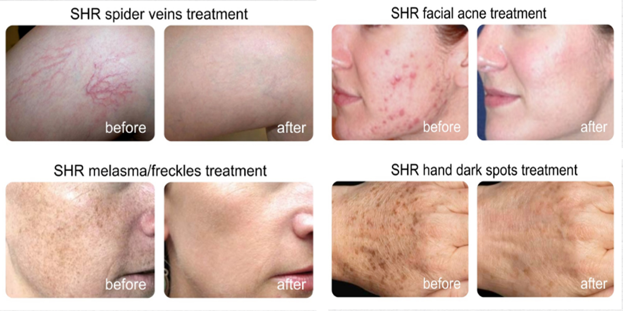 bse_ssr_before_after ipl machines - bse aesthetics