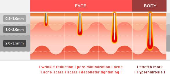 fractional radio frequency machines - bse aesthetics